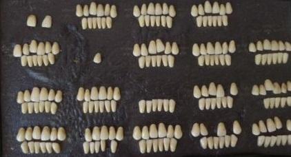 Родители дарили зубные протезы на свадьбу