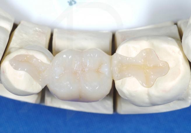 Фото зубных протезов вкладок