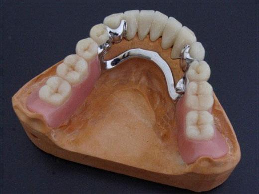 Фото кламмерного крепления зубов
