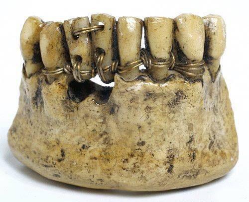 Так выглядят зубные протезы сделанные своими руками