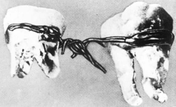 Зубные протезы в Древнем Египте