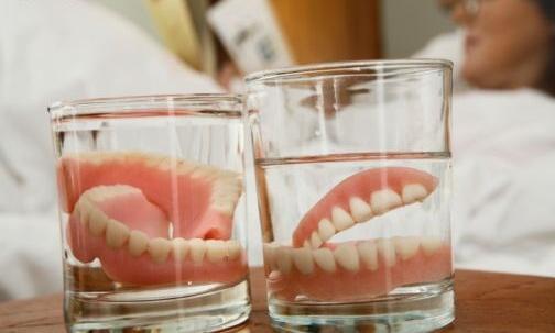 Фото съемных зубных протезов