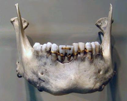 Протезы, сделанные древними стоматологами